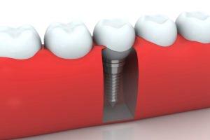 dentalimplantcloseup